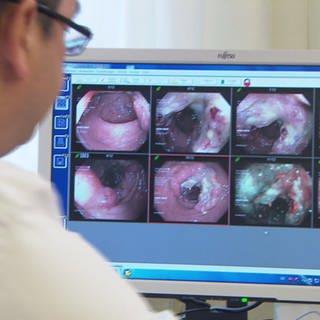 Arzt schaut sich Darmbilder an (Foto: SWR)
